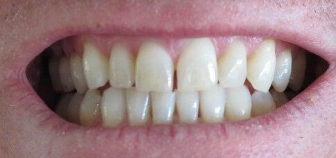να λευκάνετε τα δόντια