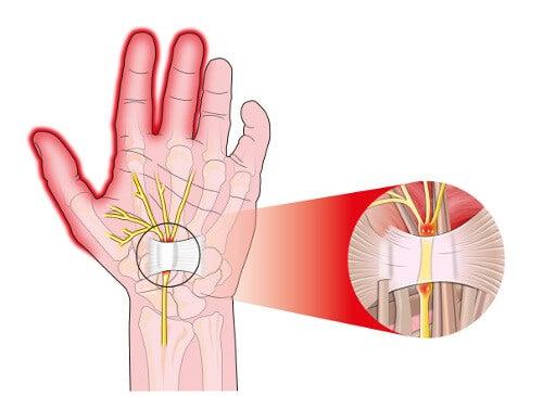 Μουδιάζουν τα χέρια - Αναπαράσταση πόνου καρπιαίου σωλήνα