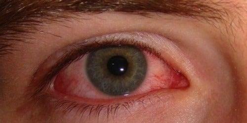 Ερεθισμένα μάτια: Αιτίες και απλές θεραπείες