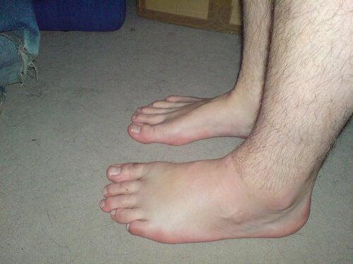 Τα καλύτερα φυσικά διουρητικά - Άνδρας με πρησμένο πόδι