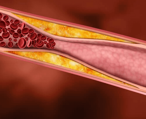 Φαρμακευτικά φυτά που μειώνουν τη χοληστερόλη