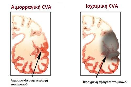 ACV-copy