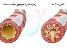 Bronchitida