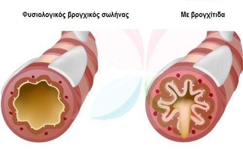 10 τροφές που καταπολεμούν το άσθμα