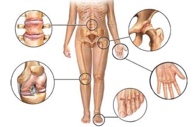 αρθρίτιδα - ωφέλειεςτων κουκουτσιών του σταφυλιού