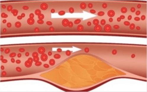 xolisteroli