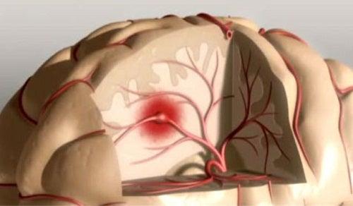 Τρόποι για να αποφύγετε το εγκεφαλικό