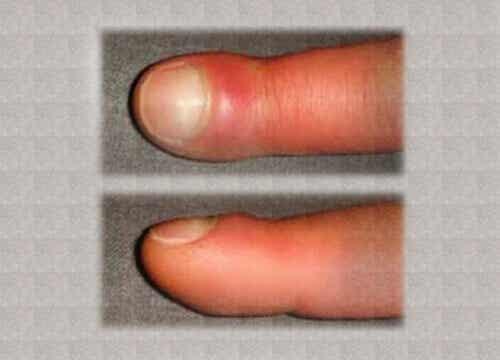 Πρήξιμο των δακτύλων: Τι το προκαλεί και αντιμετώπιση