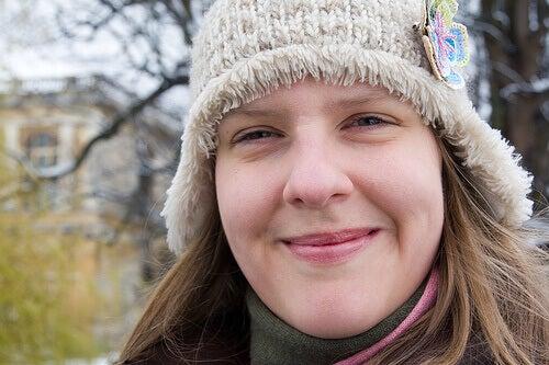 Πρόωρες ρυτίδες στο πρόσωπο - Γυναίκα χαμογελά