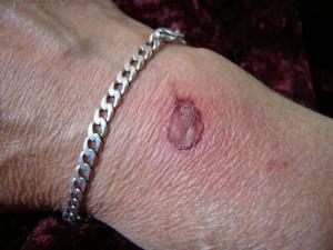 Θεραπείες για εγκαύματα - Ελαφρύ έγκαυμα στο χέρι