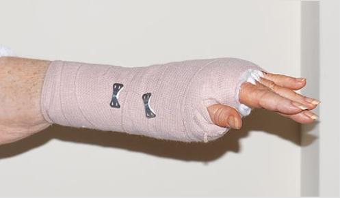 Θεραπείες για το σύνδρομο καρπιαίου σωλήνα - Γυναίκα με γάζα στο χέρι