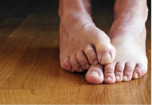 αιτίες και σπιτικές θεραπείες για την ονυχομυκητίαση - ποδια
