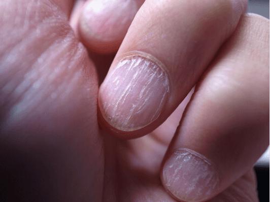 αιτίες και σπιτικές θεραπείες για την ονυχομυκητίαση- νυχια χεριων