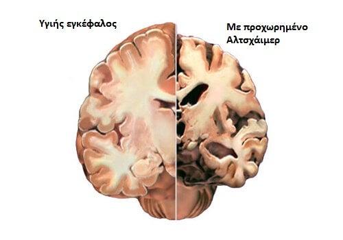 εγκέφαλος με ή χωρίς αλτσχάιμερ