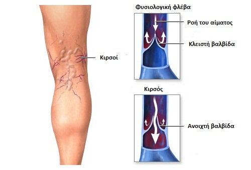 Varicose-veins1-copy (1)