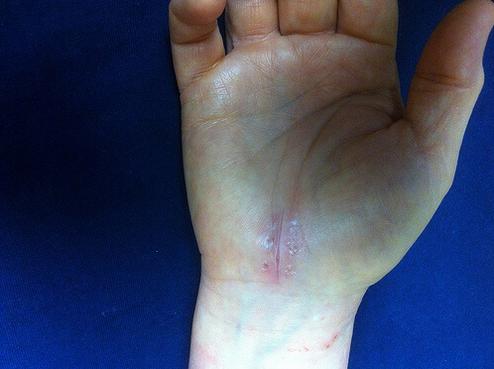 Θεραπείες για το σύνδρομο καρπιαίου σωλήνα - Εγχειρισμένο χέρι