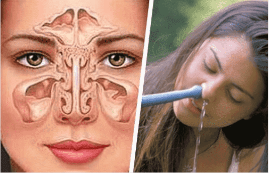Θεραπεία της ιγμορίτιδας με απλό και φυσικό τρόπο