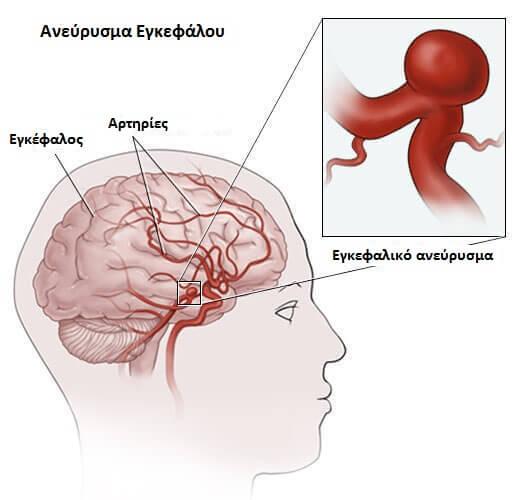 Εγκεφαλικό ανεύρυσμα - Γραφική αναπαράσταση