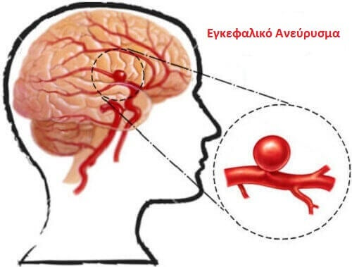 Εγκεφαλικό ανεύρυσμα: Τι είναι και πώς να το εμποδίσετε