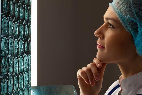 Εγκεφαλικό ανεύρυσμα - Γιατρός κοιτά αξονική εγκεφάλου