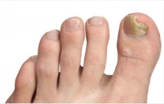 αιτίες και σπιτικές θεραπείες για την ονυχομυκητίαση- μυκητες ποδιου