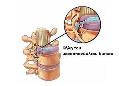 Τα συμπτώματα της δισκοκήλης! Μάθετε περισσότερα!