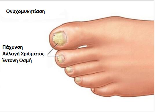Αποτέλεσμα εικόνας για διατηρήσετε την υγεία των ποδιών σας Μύκητας στο νύχι