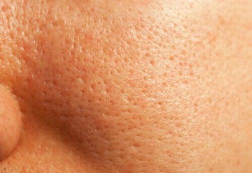 Πώς να κλείσετε τους πόρους του δέρματος με φυσικό τρόπο