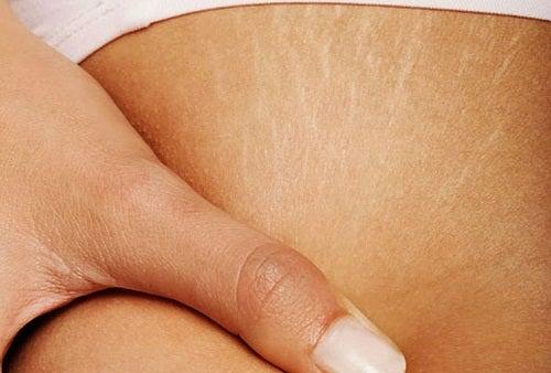 Μπορώ να απαλλαγώ από τις ραγάδες στο δέρμα;