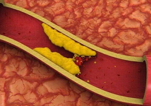 Ρυθμίστε την υψηλή χοληστερίνη φυσικά