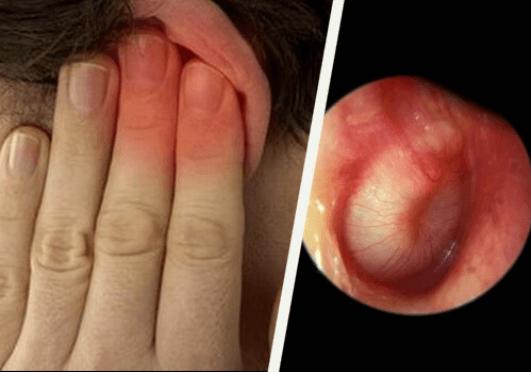 Πώς να ξεβουλώσετε τα αυτιά σας - Αυτί με μόλυνση