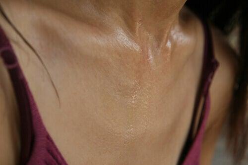 υπερβολική εφίδρωση στο λαιμο