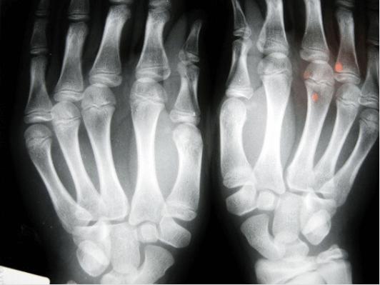 """""""κρακ"""" στα δάχτυλα - Ακτινογραφία χεριών"""