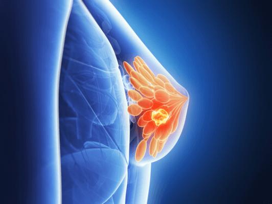 καρκίνο του μαστού