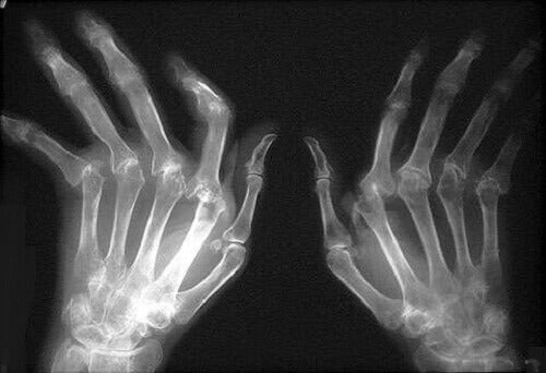 Πώς να θεραπεύσετε τη ρευματοειδή αρθρίτιδα