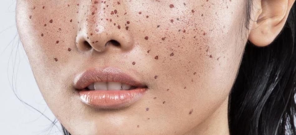 ελιές στο δέρμα