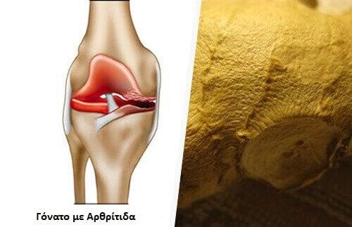 Εξαλείψτε τα συμπτώματα της οστεοαρθρίτιδας