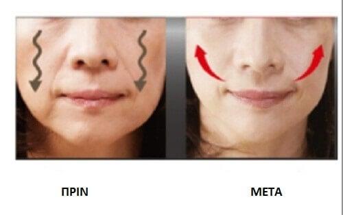 Χαλαρωμένα μάγουλα: 4 τρόποι σύσφιξης