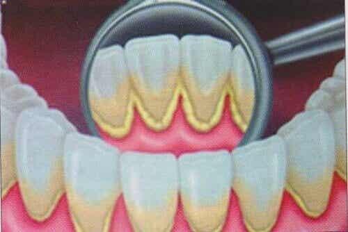 Απομακρύνετε την οδοντική πλάκα με φυσικό τρόπο