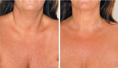 Θεραπείες για τη μείωση των ρυτίδων στο λαιμό