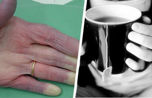 Κρύα χέρια: οι πιθανές αιτίες