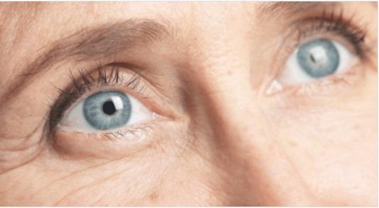 πρόωρες ρυτίδες στα ματια