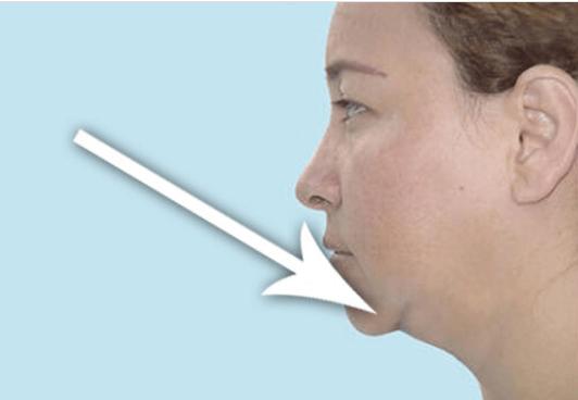 Χαλάρωση του λαιμού και φυσική αντιμετώπιση
