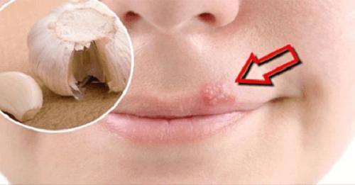 Σπιτικές θεραπείες για τον στοματικό έρπητα