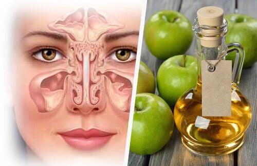 Καταπολεμήστε την ιγμορίτιδα -μηλόξυδο