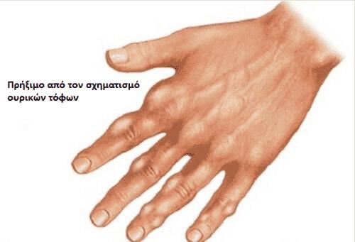 Πώς να μειώσετε το ουρικό οξύ με σπιτικές θεραπείες
