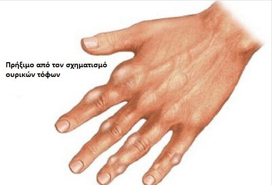 priximo