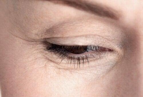 Απαλλαγείτε από τις ρυτίδες στα μάτια φυσικά