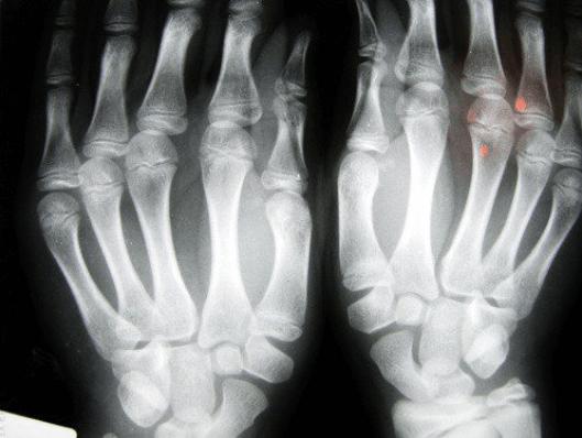 δάχτυλα και υγεία, ακτινογραφία