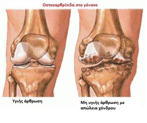 Νυχτερινός πόνος στις αρθρώσεις - Οστεοαρθρίτιδα στο γόνατο